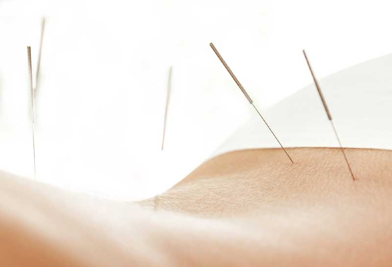 Patient receiving Medical Acupuncture